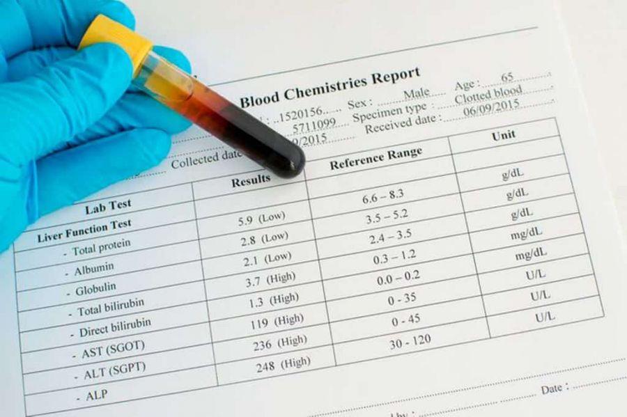 چه آزمایش هایی برای شناسایی کبد چرب گرید 2 وجود دارد؟