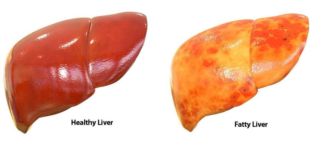 در حالت کلی روشهای پیشگیری از بیماری کبد چرب غیر الکلی در موارد زیر خلاصه میشود.