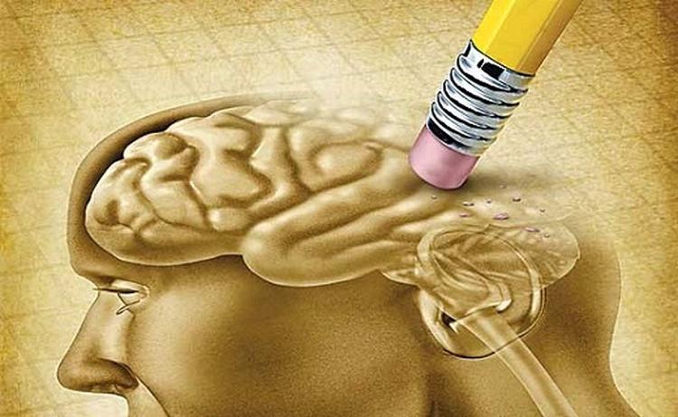 جلوگیری از زوال عقل