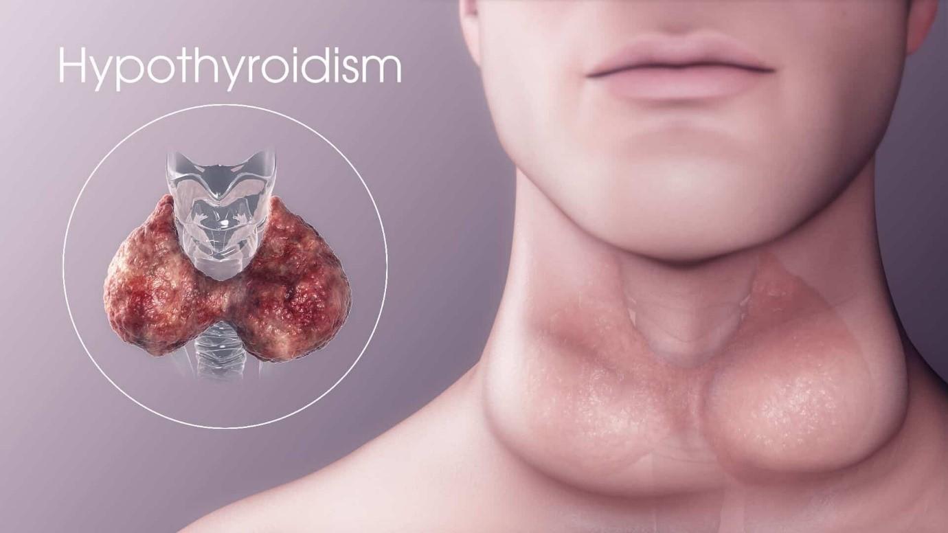 اگر تحت درمان قرار نگیرید، علائم شما شدیدتر می شود و شامل موارد زیر است: